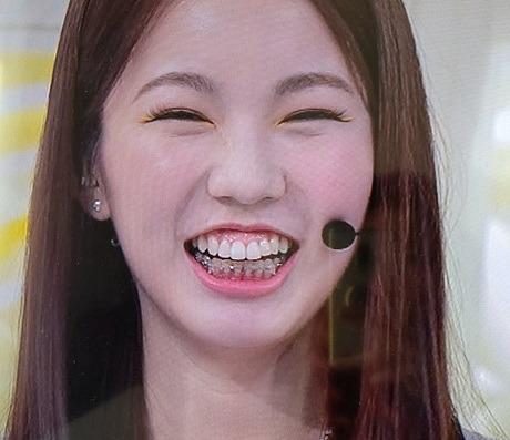 ayaka-tooth